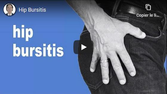 Comment  soulager la bursite de la hanche ?